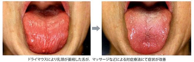 dry-mouth_04.JPG