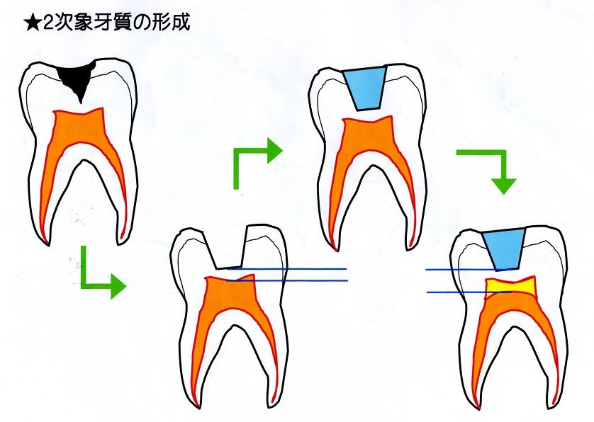 二次象牙質.jpg